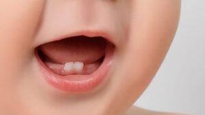 denticion-1862056